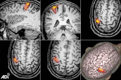 Brain scans 7